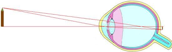 Les défauts de la vision — CultureSciences-Physique - Ressources ... 4d5831c77ecf