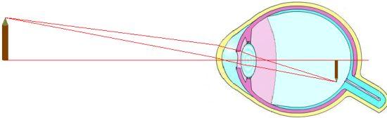 21040f49ba21d Les défauts de la vision — CultureSciences-Physique - Ressources ...